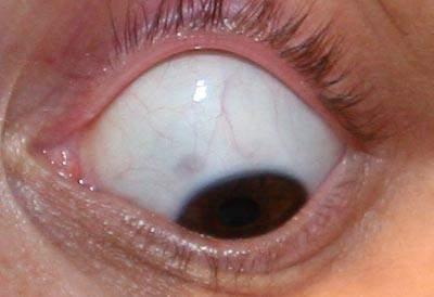 Blaue Flecken im Auge?