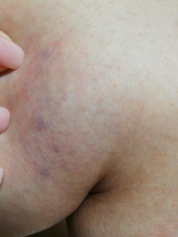 Haut unter blauer punkt der Lipom: Ursachen,