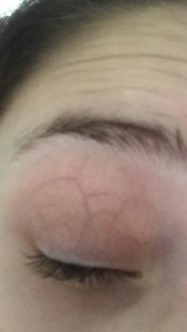 Haut venen stark durchsichtige adern sichtbare Adern Plötzlich