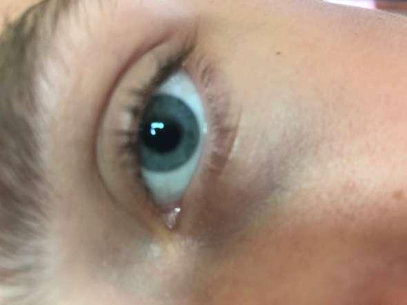 Blaue Liliane Verfarbung Unter Beiden Augen Gesundheit Und Medizin