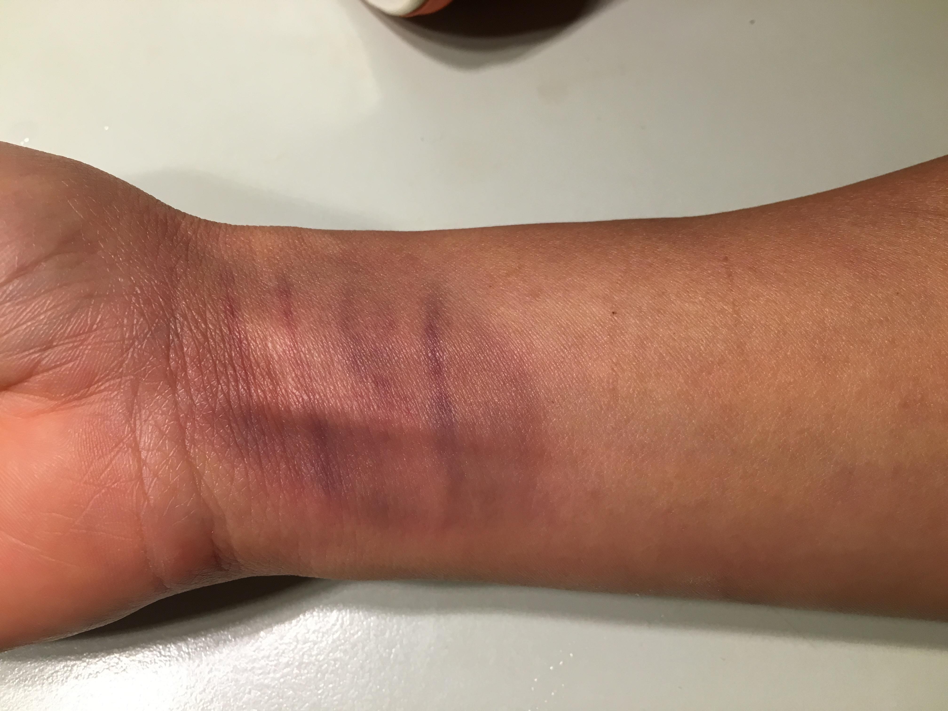 Blauer Fleck am Handgelenk ohne Grund? (Medizin, Schmerzen)