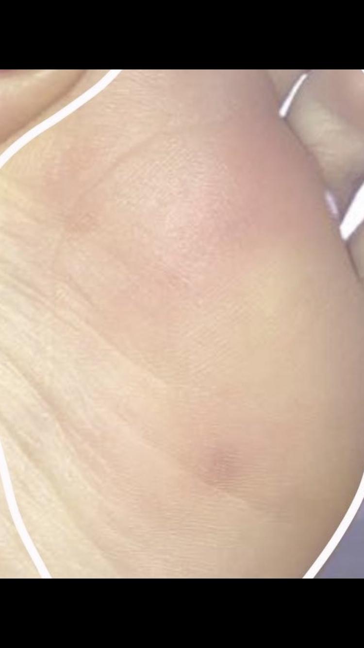 Blauer Fleck plötzlich am Fuß? (Gesundheit und Medizin)