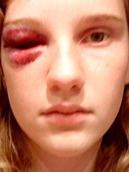 Die Verletzung vor ein paar Jahren.. - (Augen, Verletzung, Folgen)