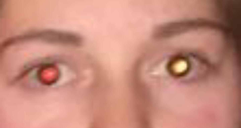 Gelbes Sekret Auge Bei Erkältung