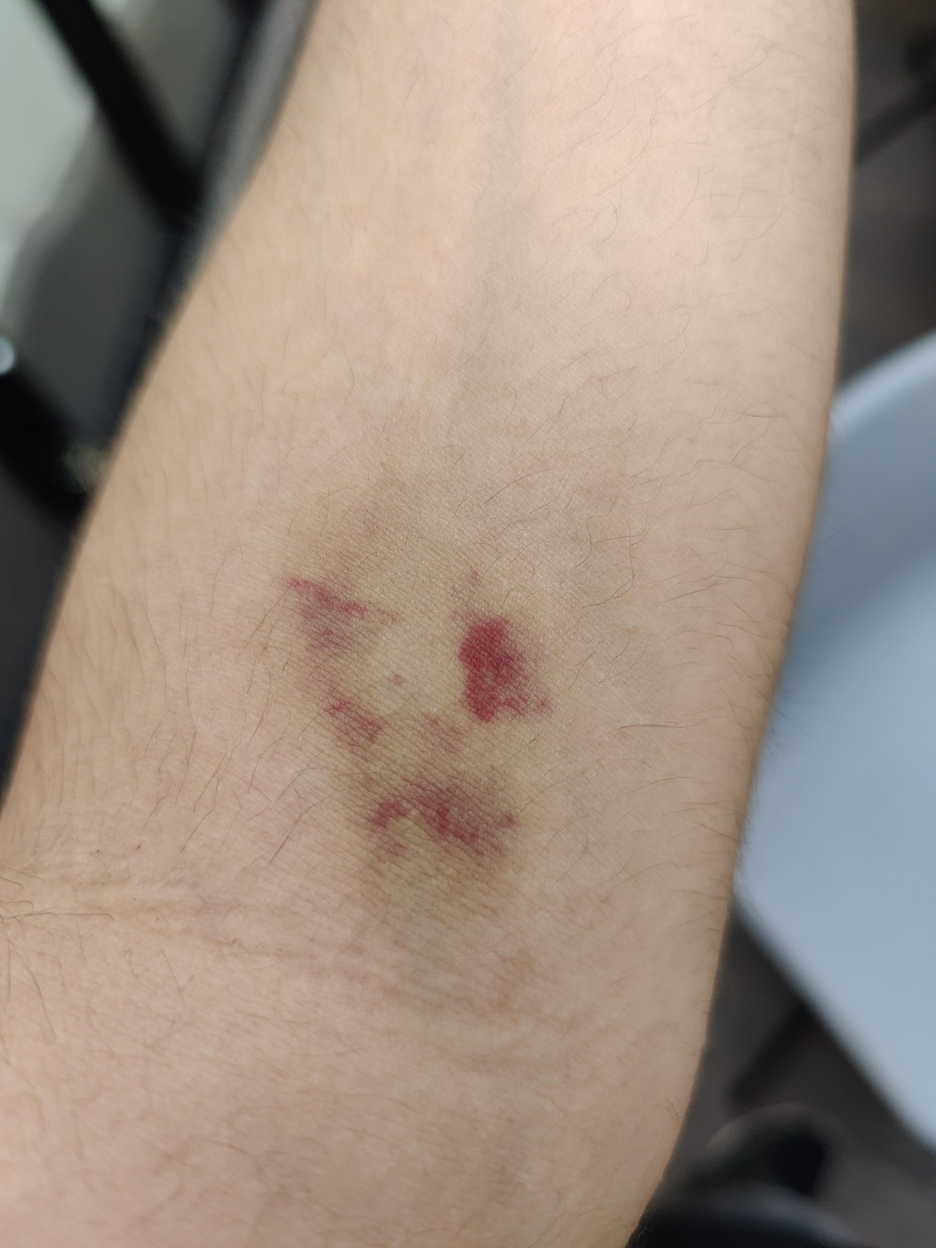 Blutabnahme schmerzen nach Zwei Wochen
