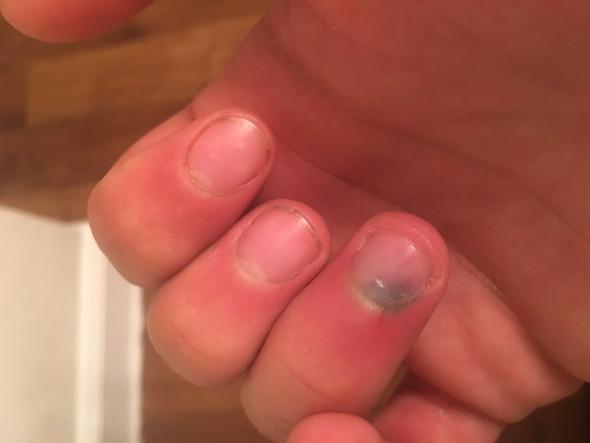 Fingernagel  - (Fingernägel, Artzt, Bluterguss)