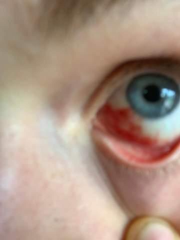Blutung im Auge?