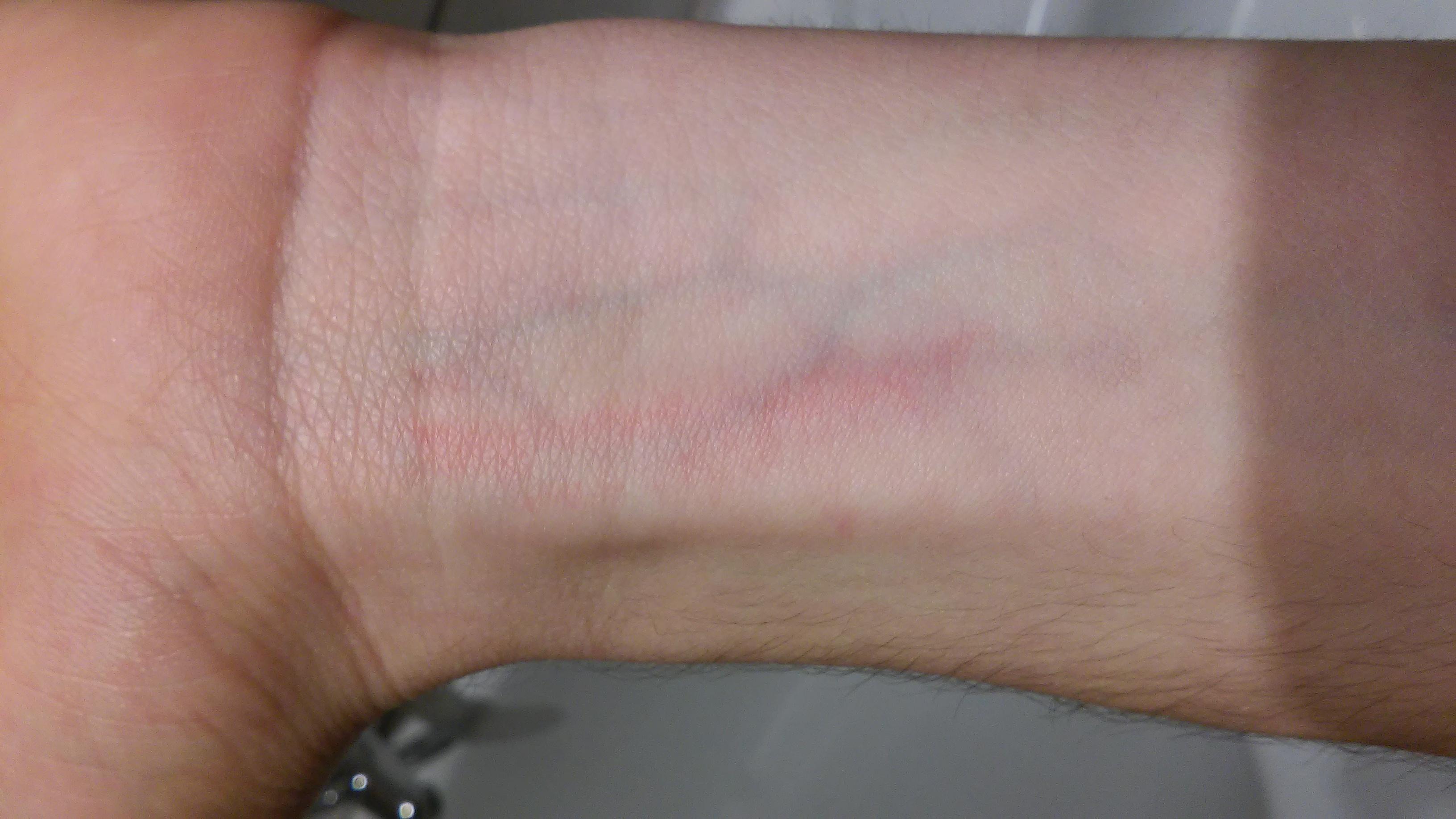 Mückenstich Blutvergiftung