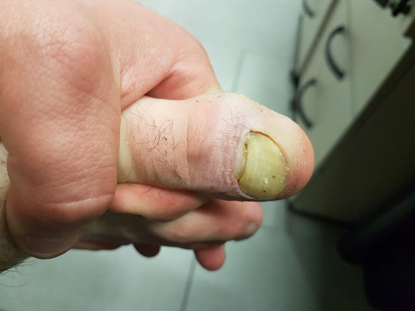 Blutvergiftung Durch Einen Zehennagel Der Abfu00e4llt ? (Krankheit Arzt Krank)
