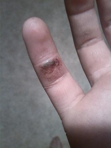 Verletzung am Finger - (Gesundheit, Krankheit, Blut)
