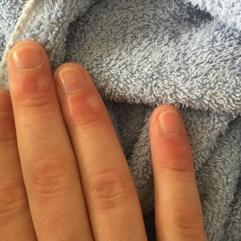 Die Hand  - (Medizin, Brandblase)