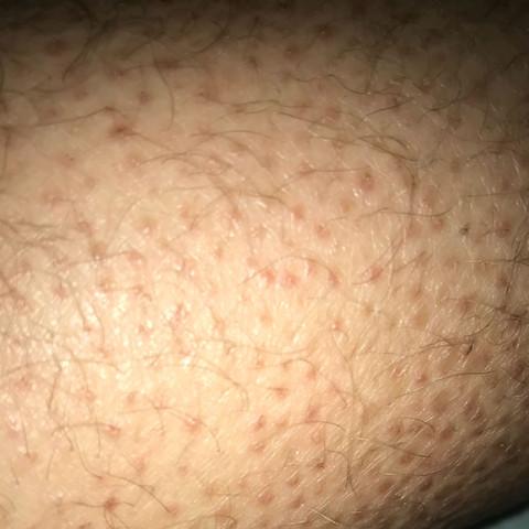 Ich verstehe nicht warum ich diese Punkte habe die sind an den Beinen+Oberarm - (Gesundheit, Krankheit, Haut)