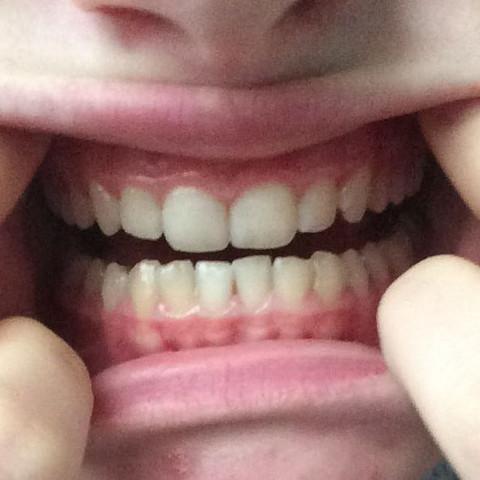 großer Zwischenraum (meine Zunge passt dadurch) - (Zähne, Zahnarzt, Zahnspange)