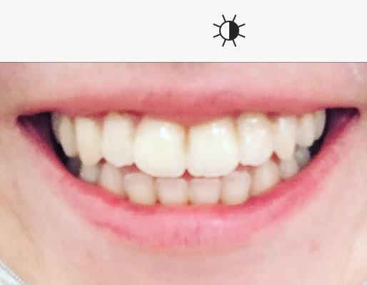 Bild  - (Bilder, Zähne)