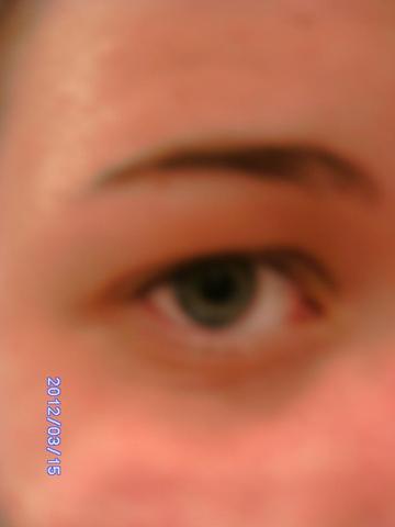 Auge offen - (braun, verfärbt, Augenlider)