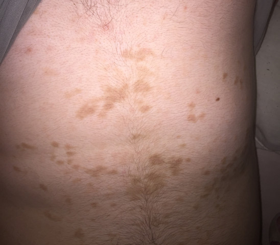 Bauch roter am trockener fleck Braune Flecken