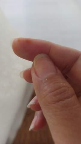Braune Flecken am finger?