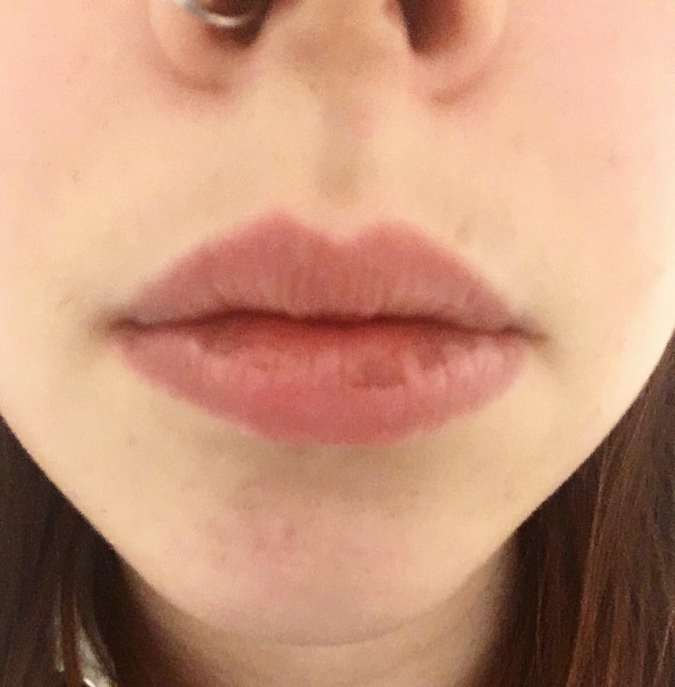 Braune Flecken auf den Lippen ( Raucher )? (Gesundheit und