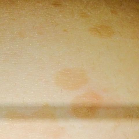 Braune haut komische flecken auf der braune Flecken