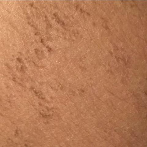 Bild 1 - (Arzt, Haut, Hautprobleme)