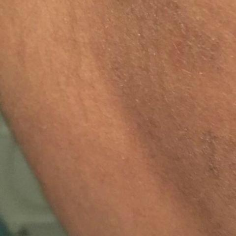 Bild 2 - (Arzt, Haut, Hautprobleme)