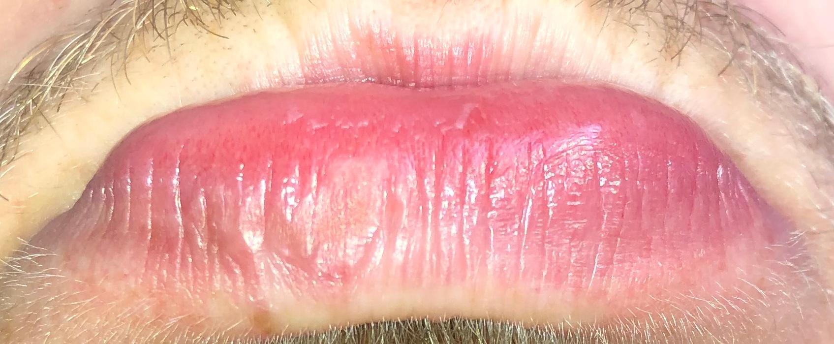 Braune Stelle an der Lippe? (Gesundheit)