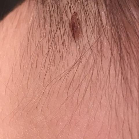 Fleck ,Hautkrebs? - (Flecken, Hautkrebs)