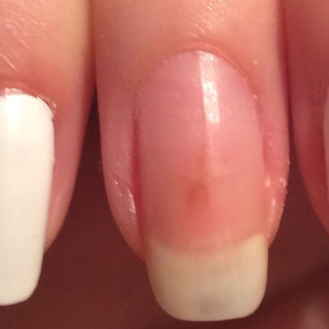 Fleck am Fingernagel - (Flecken, braun, Fingernägel)