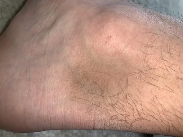 Brauner Fleck am/unter dem Fußknöchel, was ist das