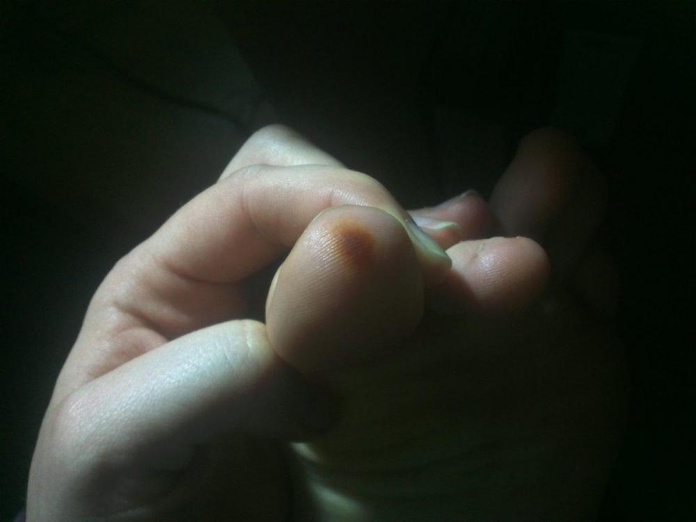 Braune flecken auf der eichel