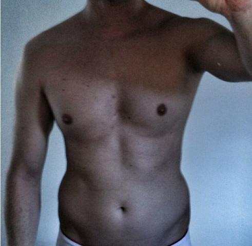 Breites Becken - (Männer, fett, Becken)