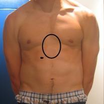 brennen in der linken brust