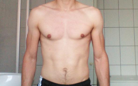 Brust Asymmetrisch? AuffälligAuffällig? (Bauch)