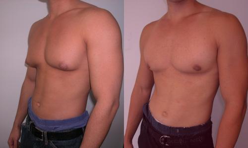 Männer Mit Weiblicher Brust