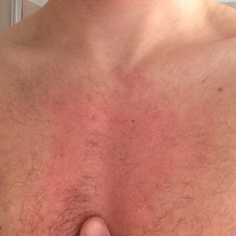 Bild von der brust - (Brust, rötung)