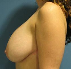 Faberlik die Creme für die Hosenträger der Brust