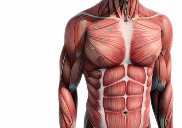 Brustmuskeln Nervenschmerzen?