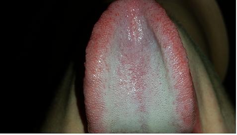 Candiose? (AIDS)