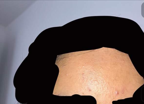 CeraVe Produkte für ölige Haut?