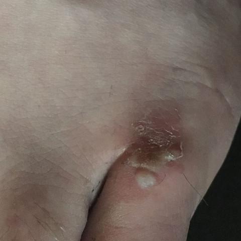 Hier ein Bild von der blase - (Füße, Wunde, Blase)