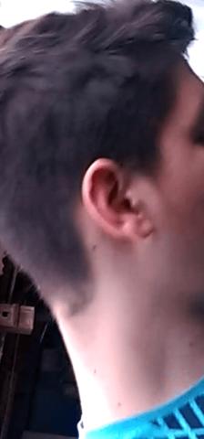Man sieht das Gesicht ist deutlich rötlicher als der Hals - (Gesundheit, Ernährung, Haut)
