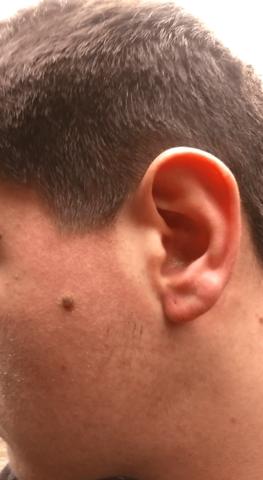 Auf der anderen Kopfseite sieht man es besser, deutlich gerötet - (Gesundheit, Ernährung, Haut)