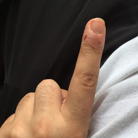 Trockene Stelle - (Gesundheit und Medizin, trockene Haut, Zeigefinger)
