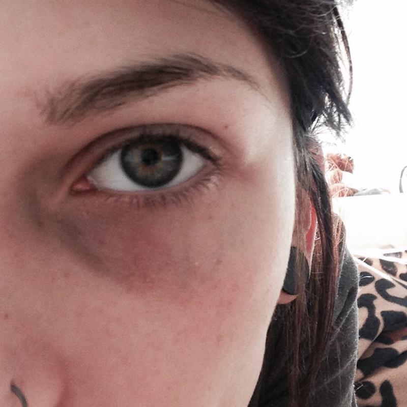 Augenringe Wegbekommen