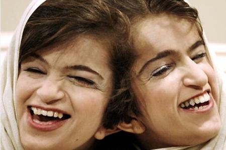 Denken Siamesische-Zwillinge zusammen? Also wenn sie ma Kopf zusammen gewachsen sind?