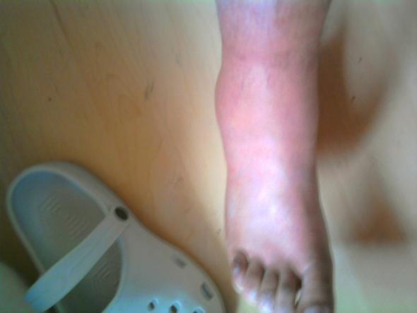 Kranker Fuß verscheidene Positionen - (Bruch, Thrombose, Verstauchung)