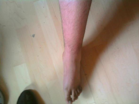 Zum Vergleich gesunder Fuß ! - (Bruch, Thrombose, Verstauchung)