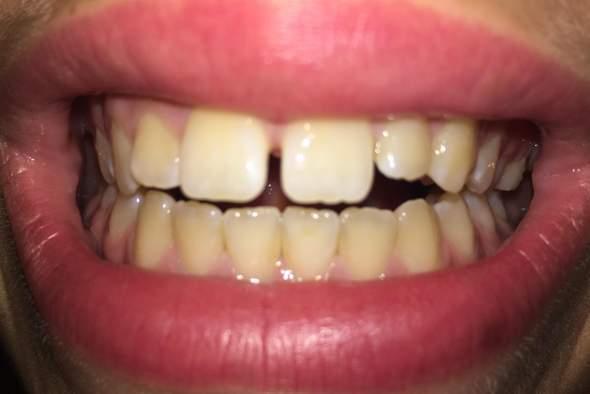 Denkt ihr ich brauche eine Zahnspange?