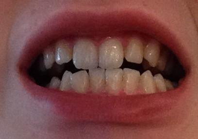 01 - (Zähne, Zahnspange)