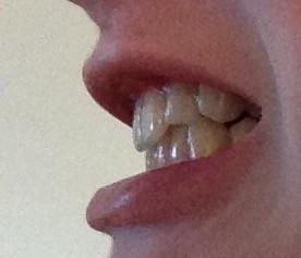 02 - (Zähne, Zahnspange)